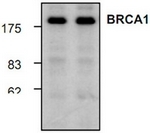 AP00120PU-N - BRCA1 / RNF53