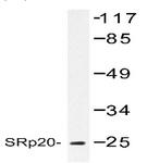 AP01175PU-N - SFRS3