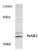AP01179PU-N - NAB2