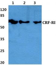 AP01194PU-N - CRHR1