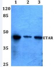 AP01200PU-N - Endothelin A receptor
