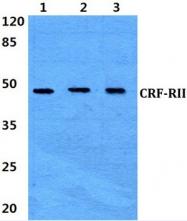 AP01213PU-N - CRHR2
