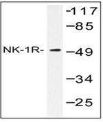 AP01219PU-N - Tachykinin receptor 1 (TACR1)