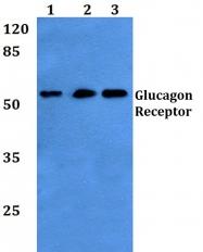 AP01269PU-N - Glucagon receptor