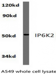 AP01285PU-N - InsP6 kinase 2 / IP6K2