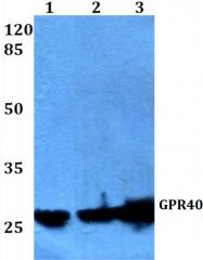 AP01314PU-N - FFAR1 / GPR40