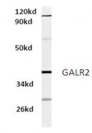 AP01317PU-N - GALR2