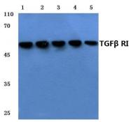 AP01457PU-N - TGFBR1 / ALK-5