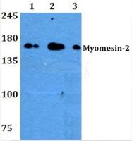 AP01485PU-N - Myomesin-2