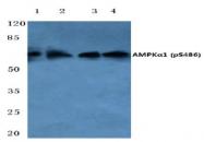 AP01523PU-N - PRKAA1