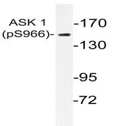 AP01527PU-N - MEKK5 / ASK1