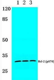 AP01536PU-N - Bcl-2