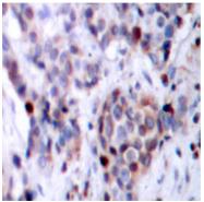 AP01652PU-N - RELA / NF-kB p65