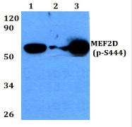 AP01835PU-N - MEF2D