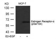 AP02368PU-S - Estrogen receptor alpha