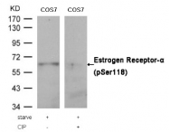 AP02370PU-S - Estrogen receptor alpha