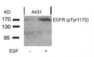 AP02479PU-S - EGFR / ERBB1