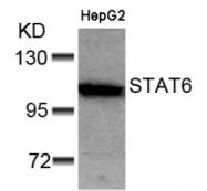 AP02591PU-S - STAT6