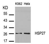 AP02744PU-S - HSPB1 / HSP27
