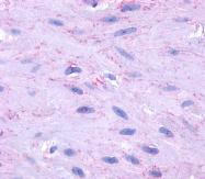 AP03071PU-N - TACR2 / NK2R
