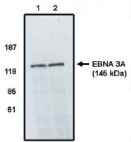 AP05013PU-N - Epstein Barr Virus / EBV