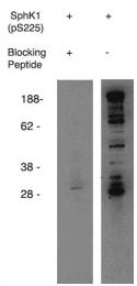 AP05255PU-N - Sphingosine kinase 1 (SPHK1)