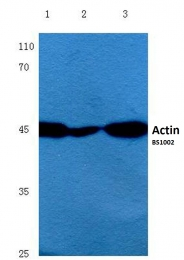 AP06000PU-N - pan Actin