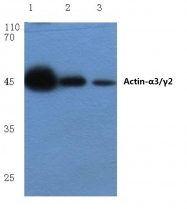 AP06002PU-N - gamma 2 smooth muscle Actin / ACTG2