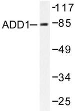 AP06003PU-N - Alpha-Adducin / ADD1