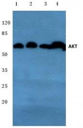 AP06004PU-N - AKT1 / PKB