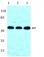 AP06005PU-N - AKT1 / PKB
