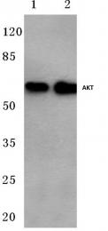 AP06006PU-N - AKT1 / PKB