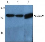 AP06012PU-N - Annexin A6 / ANXA6