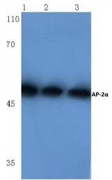 AP06013PU-N - TFAP2A / AP-2 alpha