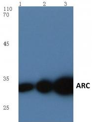 AP06016PU-N - ARC / ARG3.1