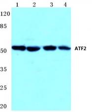 AP06019PU-N - ATF2
