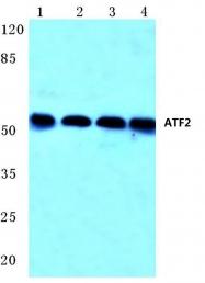 AP06020PU-N - ATF2