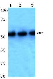 AP06022PU-N - ATF2