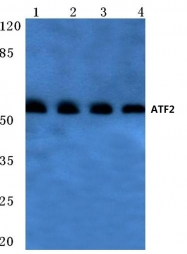 AP06023PU-N - ATF2