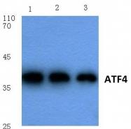 AP06024PU-N - ATF4