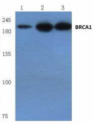 AP06033PU-N - BRCA1 / RNF53