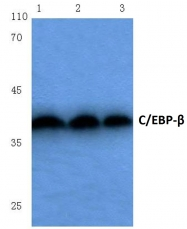 AP06034PU-N - CEBPB