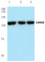 AP06035PU-N - CARD6