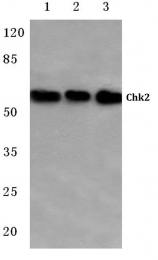AP06051PU-N - CHK2
