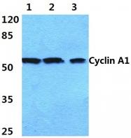 AP06080PU-N - Cyclin A1