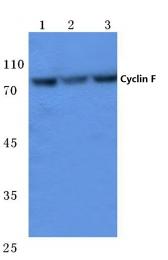 AP06083PU-N - Cyclin F