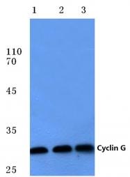 AP06084PU-N - Cyclin G1