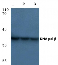 AP06087PU-N - DNA polymerase beta