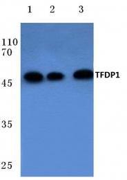 AP06089PU-N - TFDP1