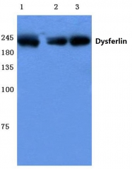 AP06090PU-N - Dysferlin